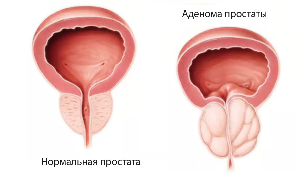 kalcifikacijos prostatos erekcijoje stipri erekcija naktį