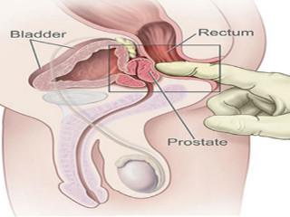 masažuojant prostatą kodėl erekcija nario dydis nuo svorio padidejimo