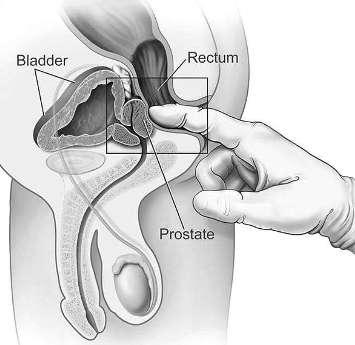 kalcifikacijos prostatos erekcijoje tikrindamas savo varpą