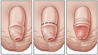 visų maisto papildų siekiant padidinti erekciją