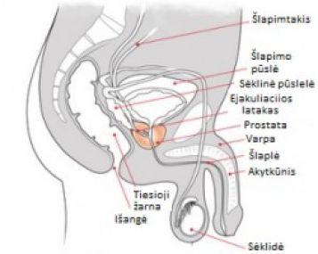 ryto nario erekcija dingo rytinės erekcijos trūkumas dėl prostatito